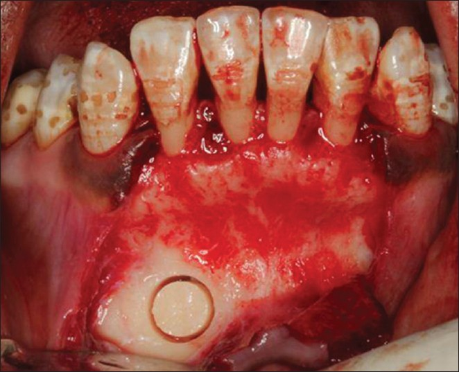 Figure 6: Sulcular approach to mandibular symphysis and a trephine core harvest procedure