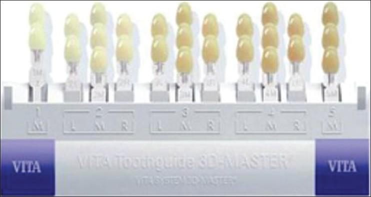 graphic about Tooth Shade Chart Printable identify Colour choice Basavanna R S, Gohil C, Shivanna V - Int J