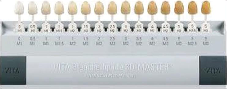 photo about Tooth Shade Chart Printable named Colour quantity Basavanna R S, Gohil C, Shivanna V - Int J