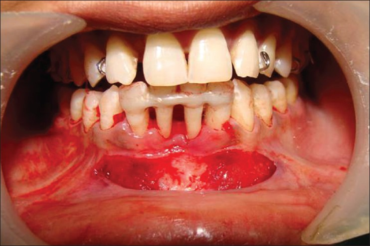 Figure 7: Partial thickness flap raised after incision at mucogingival junction for preparation of the recipient site