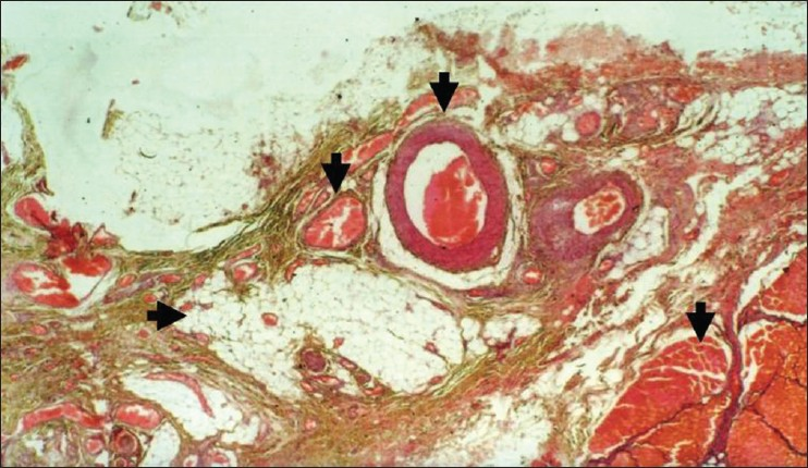 Figure 11: Photomicrograph of histopathological sections (H and E) at ×10 (color)