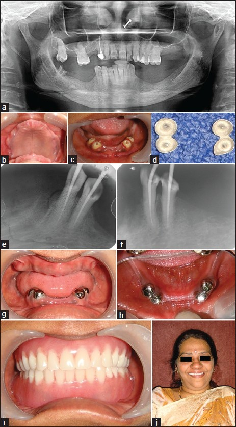 Figure 1: (a) Case 1: Pre-treatment orthopantomogram. (b-d) Case 1: Intra oral maxillary, mandibular before coping insertion, copings ready for cementation. (e-h) Case 1: Mandibular canine and first premolars endodontically treated, copings cemented. (i-j) Case 1: Post-treatment intra and extra oral
