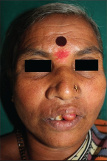 Figure 1: Extra oral picture of the patient