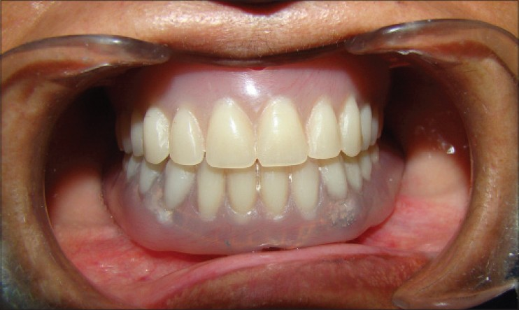 Telescopic denture a treatment modalitity of preventive