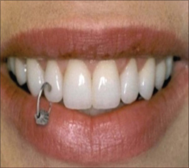 Oral Piercing Style Statement Or A State Of Disharmony Khalia N Vemanaradhya Gg Mehta Ds Int J Oral Health Sci