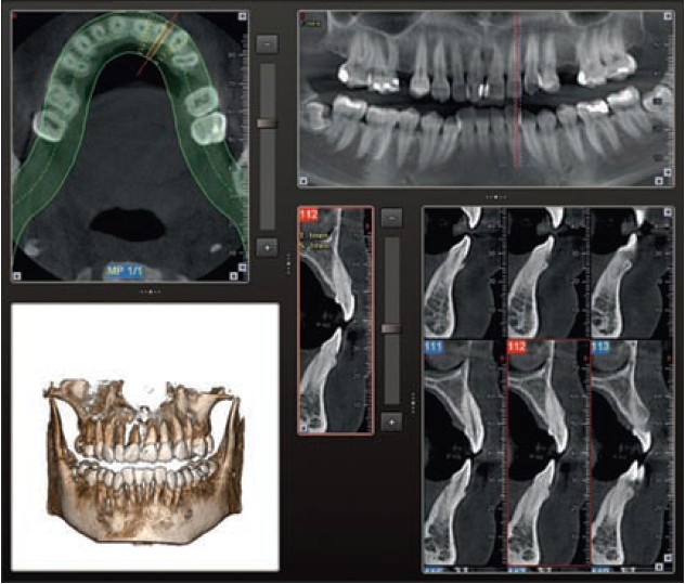 Figure 10: Dehiscence, fenestration defects and periodontal cysts