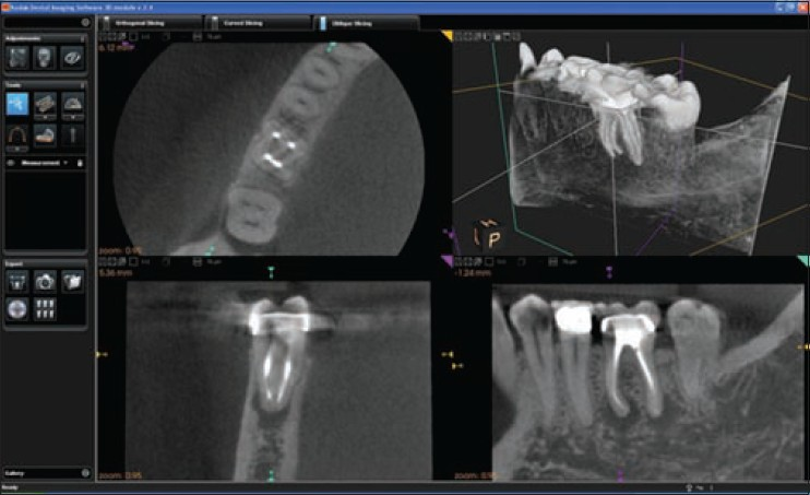 Figure 13: Cone beam computed tomography image of the periapical lesions