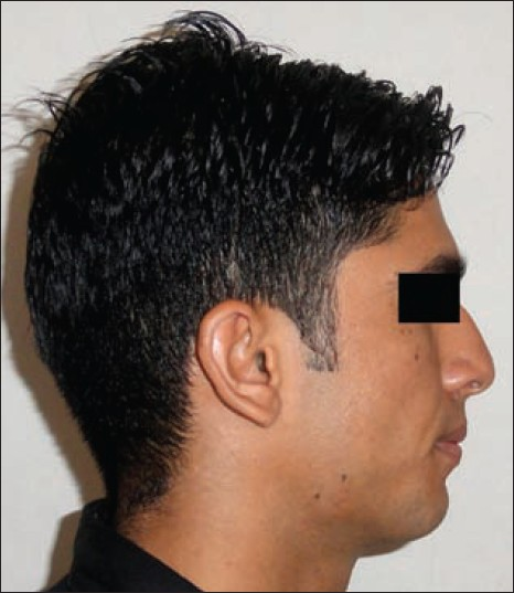Figure 1: Extraoral photograph showing a swelling over the right angle of the mandible region