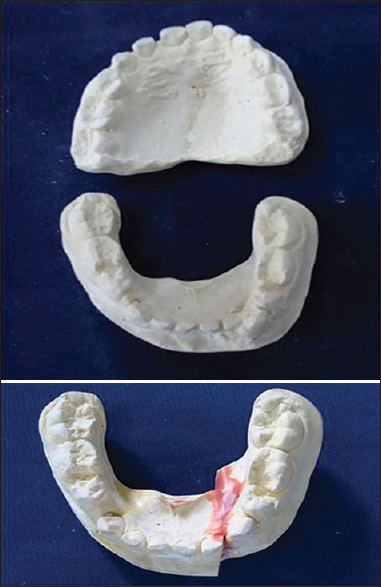 Figure 3: Modified occlusal splint