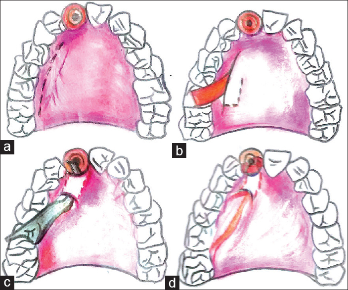 Figure 3: (a) Modified single incision given for connective tissue harvest, (b) reflection of periosteal pedicle sub-epithelial connective tissue graft, (c) palatal tunneling done near the recipient site for advancement of pedicle graft, (d) advancement of the pedicle graft through the tunnel over the extraction socket