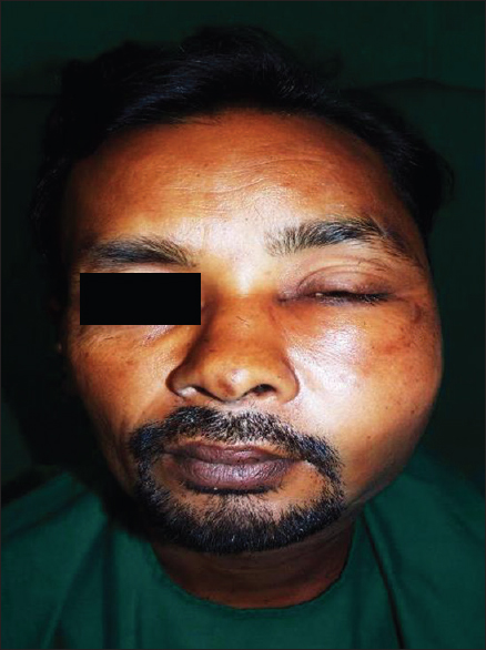 Figure 1: Postextraction photo of patient showing left hemifacial swelling, neck with left facial nerve palsy
