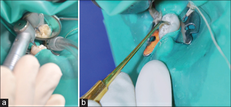 Figure 2: (a) Cavity preparation, (b) restoration of the tooth