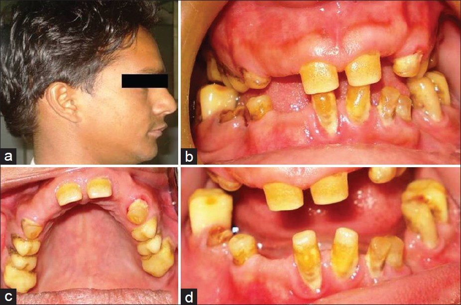 Figure 2: Clinical photographs of younger sibling (a) profile view showing micrognathic mandible (b) intraoral frontal view, (c) maxillary occlusal view, (d) mandibular occlusal view showing yellow-brown discoloration of teeth, multiple unerupted teeth, severe attrition, and lack of cuspal morphology in posterior teeth