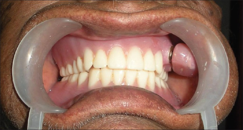 Figure 4: Postinsertion intraoral view