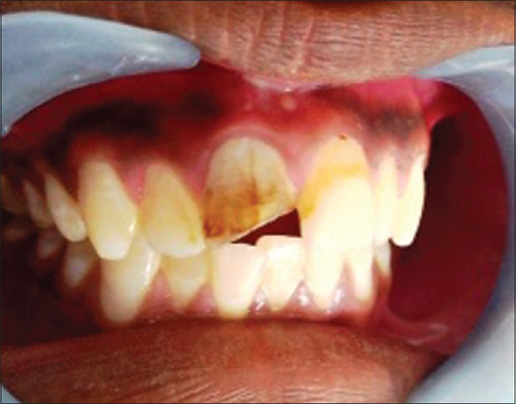 Figure 1: Preoperative image of patient showing fractured 11 with discoloration