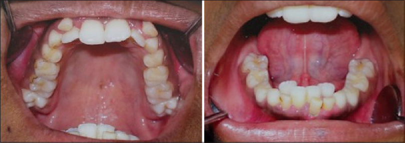 Figure 2: Intraoral photographs depicting over-retained deciduous teeth and clinically missing multiple permanent teeth