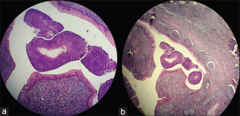 Figure 3: Hematoxylin and eosin stained slide showing tonsillar crypts lined by squamous epithelium with underlying subepithelium composed of lymphoid follicles with prominent germinal centers (a). Focal areas in the crypts showed actinomycosis with areas of central necrosis (b)