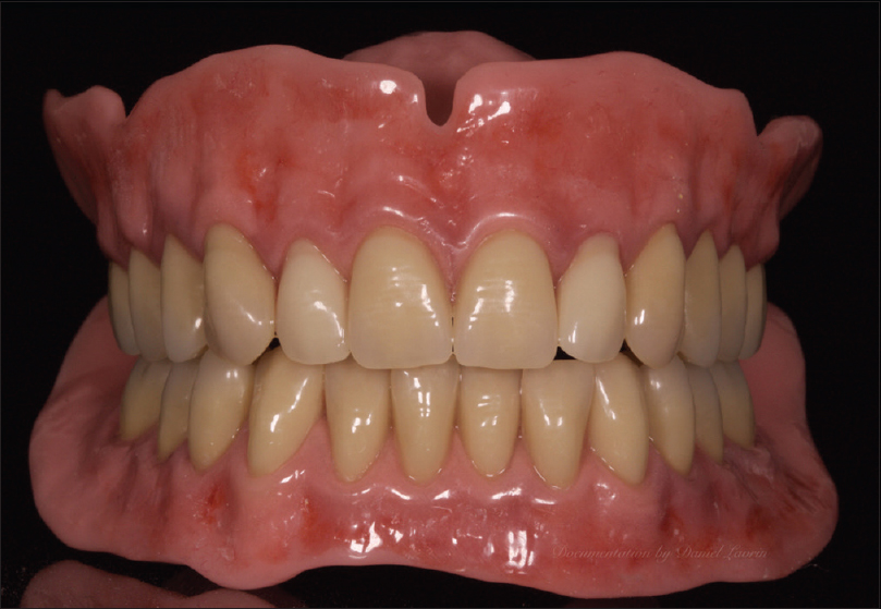 Figure 2: Dentures with stained gingiva