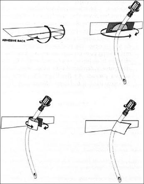 Figure 4: Tape is torn and folded with nonadhesive side upon itself