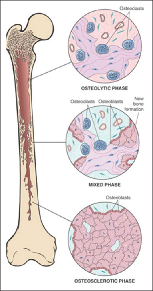 Figure 4: Pathogenesis/phases of Paget's disease of bone
